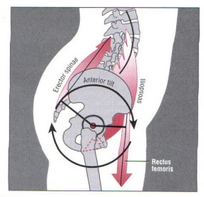 """Anterior Pelvic Tilt <a href=""""#footnote-1-220260"""" id=""""note-1-220260"""" rel=""""footnote"""">1</a>"""