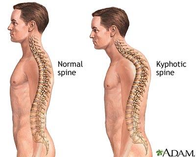 Rundrücken (Hyperkyphose) wegtrainieren mit diesen Übungen ...