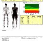 kocc88rperfettanteil kfa messung via dexa frau seite 3 150x150 - Körperfettanteil messen: Wie hoch ist dein KFA wirklich? (mit Tabelle)