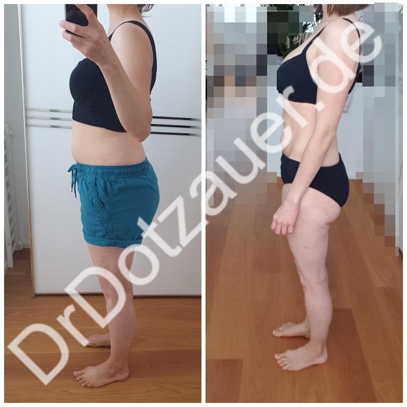 seite vorher nachher nach 8 wochen verpixelt - Schnell Abnehmen: Wie du mit wirksamen Tipps gesund bis zu 2kg / Woche Fett verlieren kannst (und keine Muskeln)